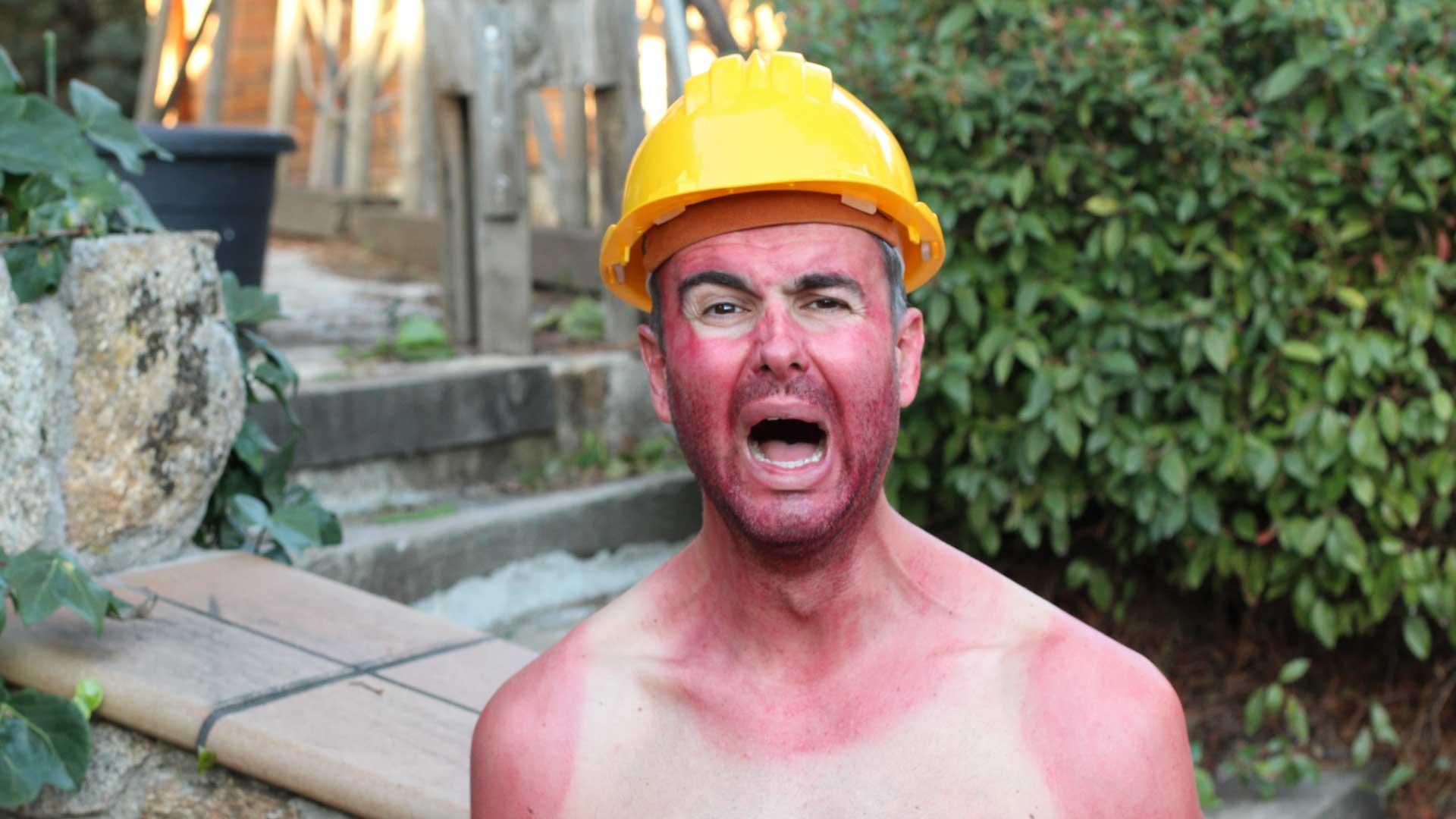 Employee burnt during work